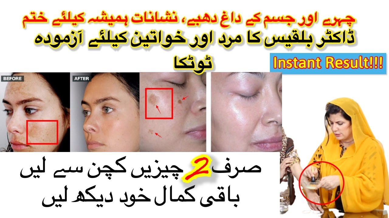 Instantly Remove Ageing Spots Acne Scars And Freckles In Urdu