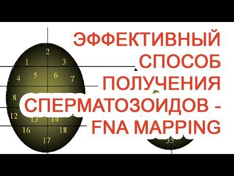 Эффективный способ получения сперматозоидов – FNA Mapping / Доктор Черепанов
