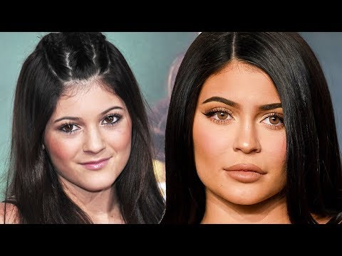 Kylie Jenner Transformation Over The Years
