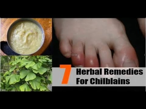 Health News: Top 7 Herbal Remedies For Chilblains