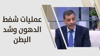 د. عمر الشوبكي - عمليات شفط الدهون وشد البطن