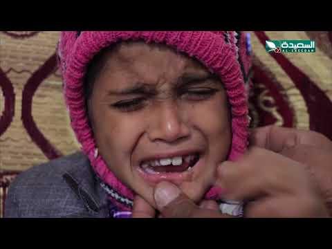 سنابل الخير - طفل يعاني من فقدان الاحساس ومرض الإيذاء النفسي 21-9-2020م