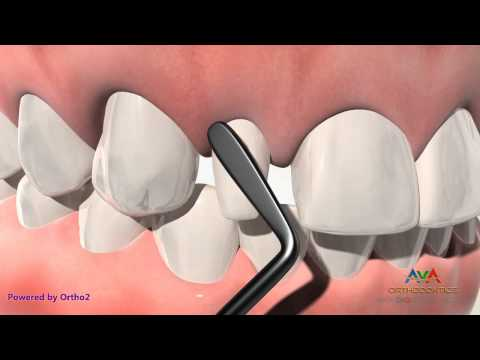 Small (AKA Peg) Lateral Incisor  Treatment by Composite Build Up - Orthodontic & Restorative