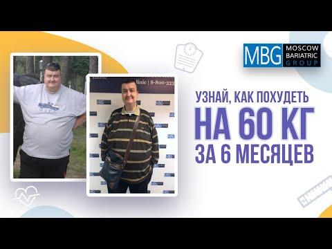 Минус 60 кг за 6 месяцев | Отзыв после уменьшения желудка (гастропластики)