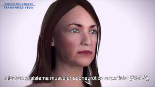 Ultherapy El único Procedimiento No Invasivo Para Tensar Y Reafirmar La Piel De Cuello Y Rostro Youtube