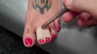 Buddy Taping: Treatment for Toe Injuries