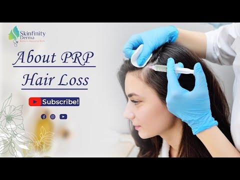 PRP TREATMENT BY -  Dr.  Huda Ejaz, Skinfinity Derma Clinic. Noida.