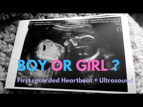 First Recorded Heartbeat + Gender Reveal Ultrasound