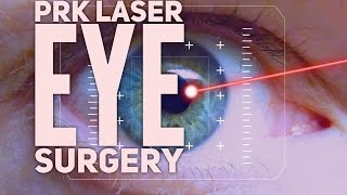 My PRK laser eye vision surgery. The day of surgery  and recovery process