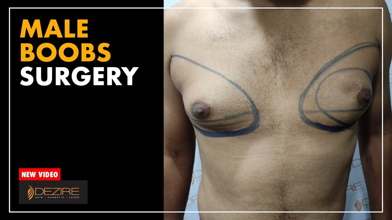 Beware of man boobs
