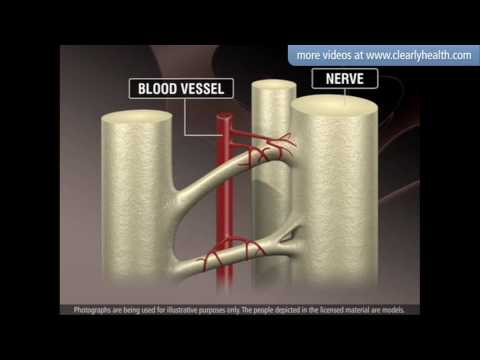 Diabetes: Nerve damage (Neuropathy)