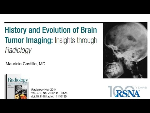History and Evolution of Brain Tumor Imaging: Insights through Radiology