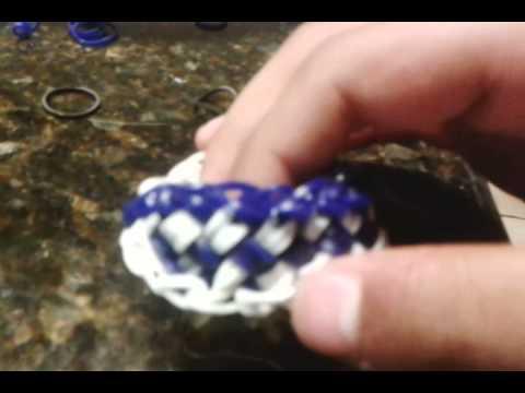 Acupuncture, for Shoulder and rotator cuff painKaynak: YouTube · Süre: 4 dakika11 saniye