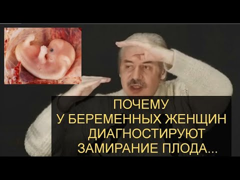 Н.Левашов: Обман врачей! Почему у беременных женщин диагностируют замирание плода? Плод ценой $9 млн