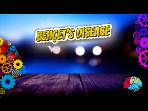 Behçet's disease