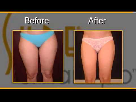 Diet pills extreme weight loss picture 8
