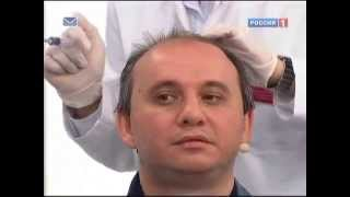 Смотреть видео сыпятся волосы у мужчин