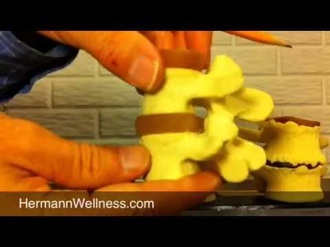 Disc Degeneration Spinal Arthritis Part 1