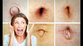 Top 10 Weirdest Real Life Phobias