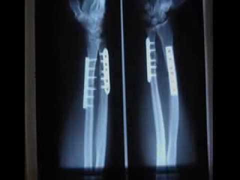 Broken Arm X-Rays - YouTube