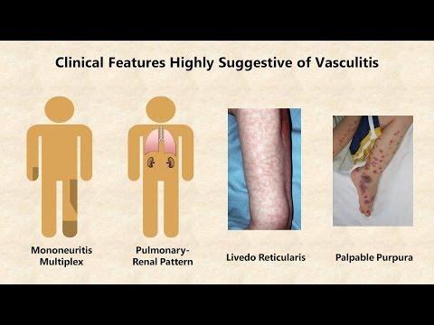 Vasculitis An Overview