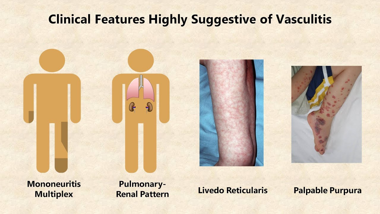 Gipsz visszér vasculitis esetén Mi az oka?