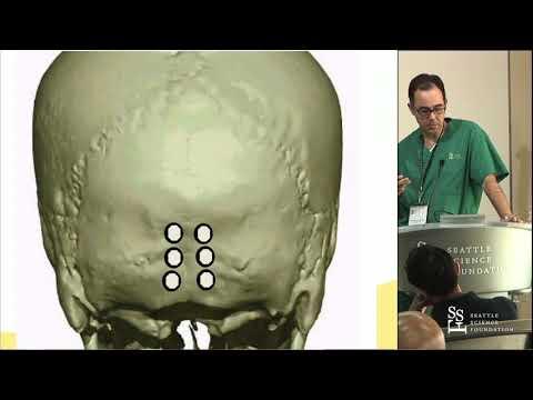 Cervical Spine Stabilization - Charles A. Sansur, MD, MHSc, FAANS