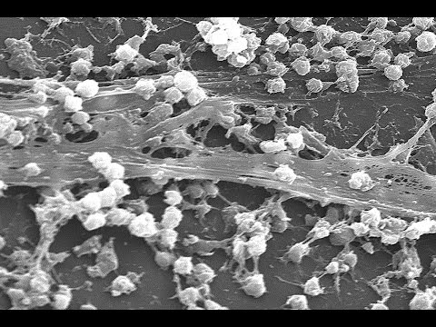 Are Biofilms a Major Missing Part of Chronic Disease Treatment?