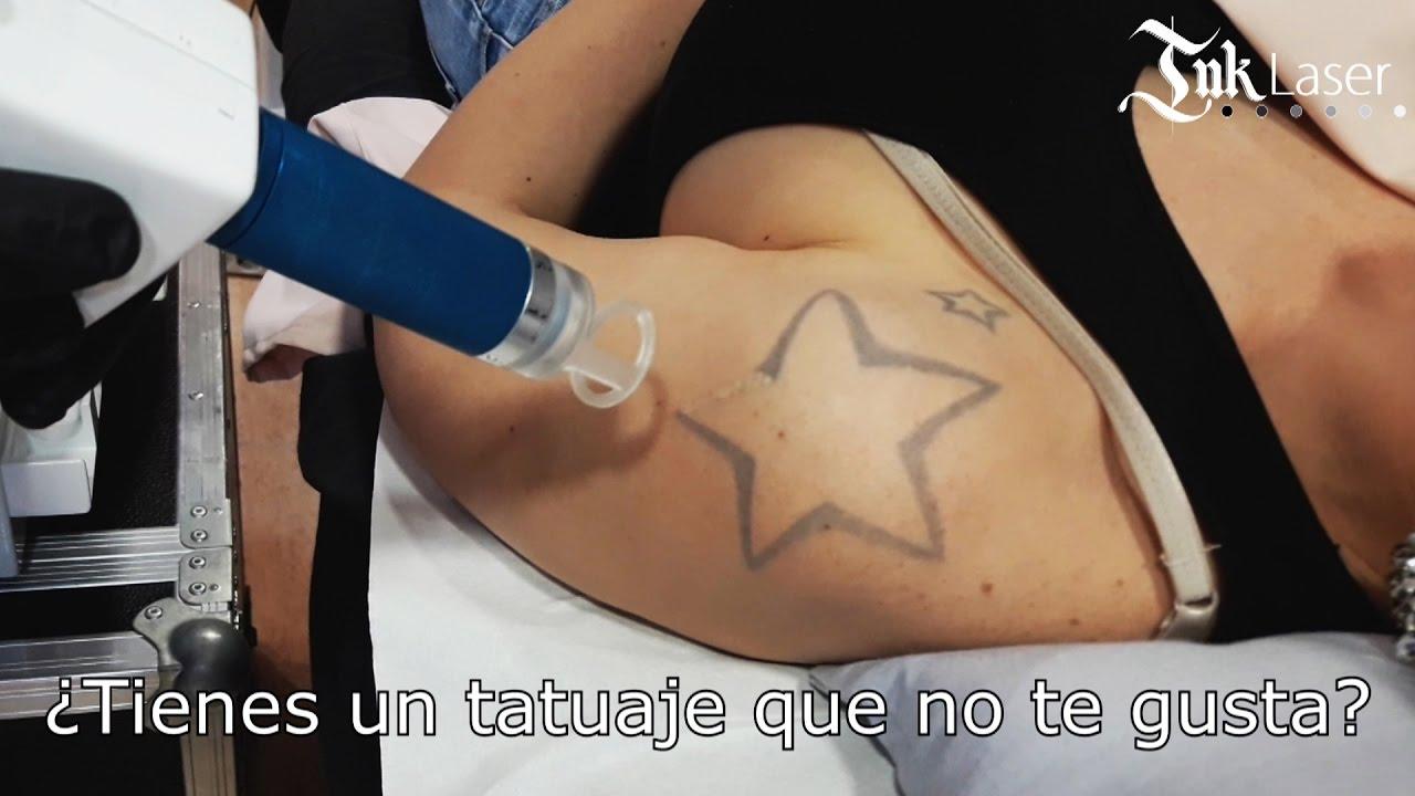 Eliminar Tatuajes Alicante Precio Clínica