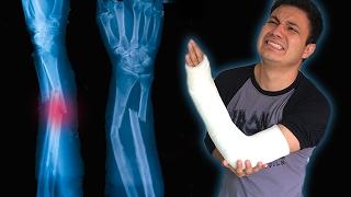 Third-degree exposed wrist fracture - Luisito Rey ♛