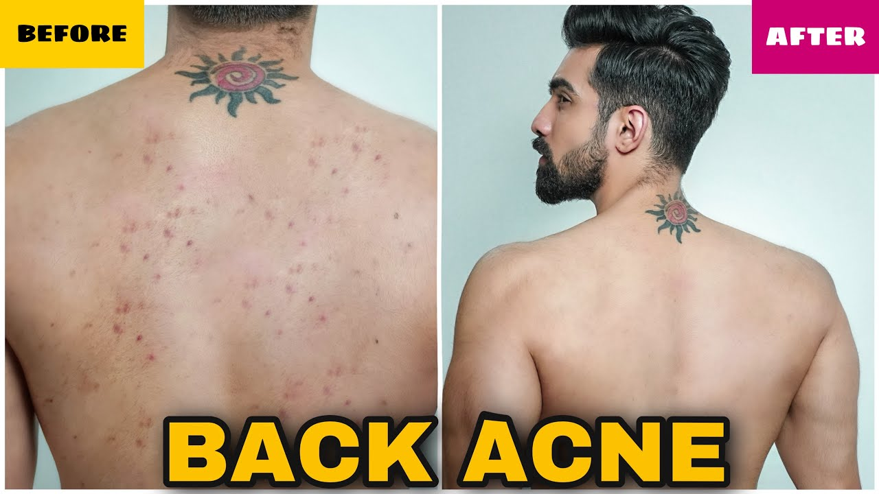How To Remove Back Acne Fast Men Women Natural Pimples Back Acne