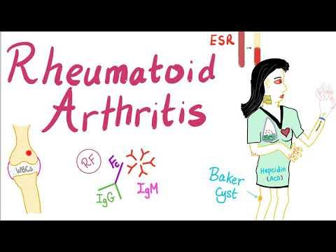 Rheumatoid Arthritis (Part 8): Diagnosis
