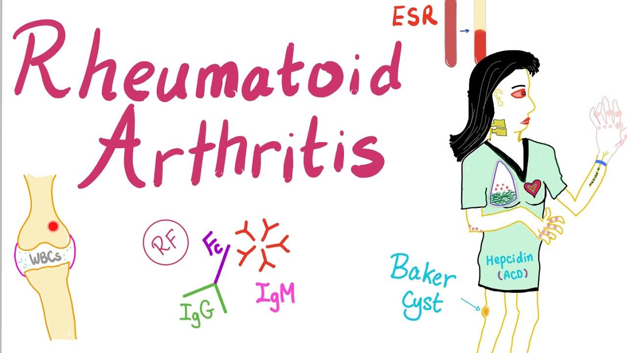 rheumatoid arthritis boka fájdalom)