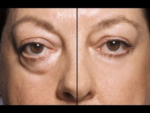 HOW TO: MAKE UNDER EYE BAGS DISAPPEAR IN SECONDS!!!! - YouTube