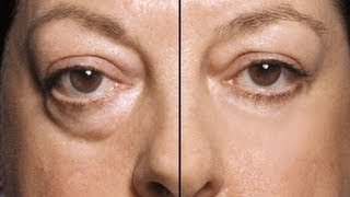 HOW TO: MAKE UNDER EYE BAGS DISAPPEAR IN SECONDS!!!!