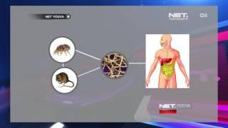 Download Video NET YOGYA - Apa itu Sebenarnya Penyakit Leptospirosis MP3 3GP MP4