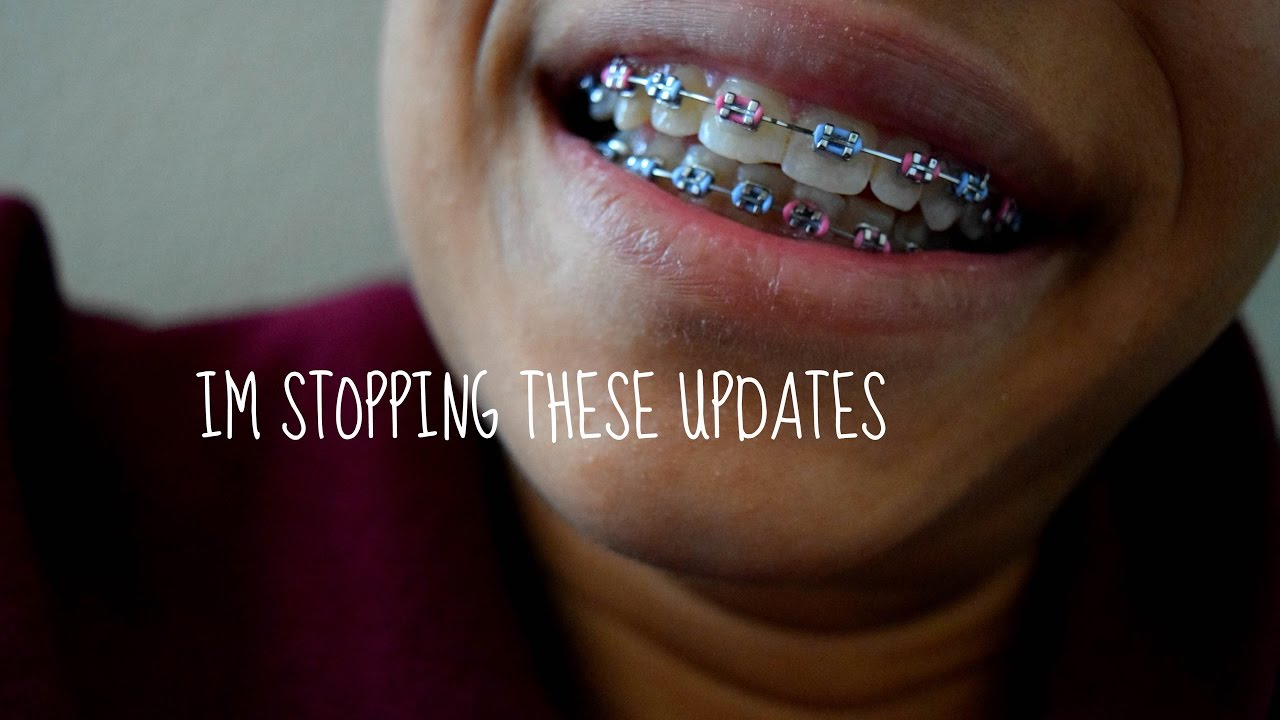 THICKER WIRE   BRACES - YouTube