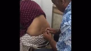 Lumbar Epidural Injection For BackPain