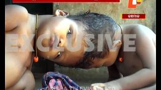 Conjoined twins need help for operation