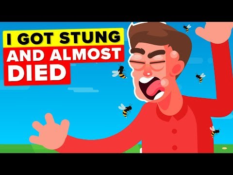 I Got Stung 50 Times By Bees & I'm Allergic - Story
