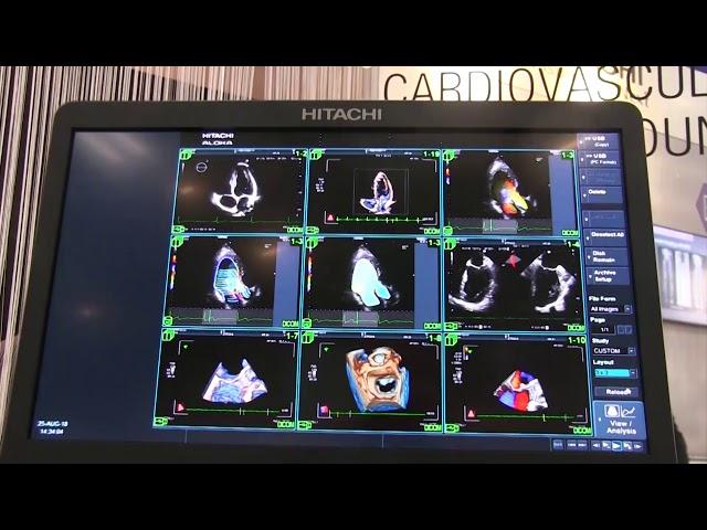 Dopo l'infarto del miocardio, preferire bypass o angioplastica?