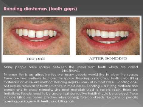 Best Dentist in Coral Springs   Barbag Dental
