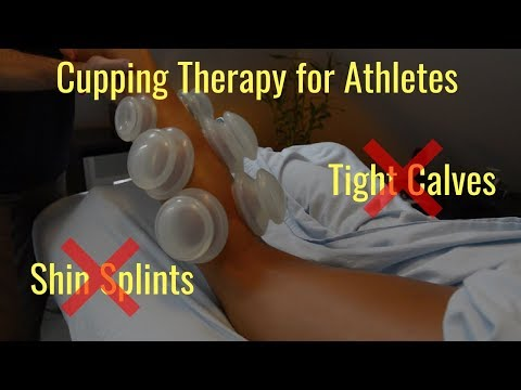 Massage Cupping Techniques for the Shins & Calves