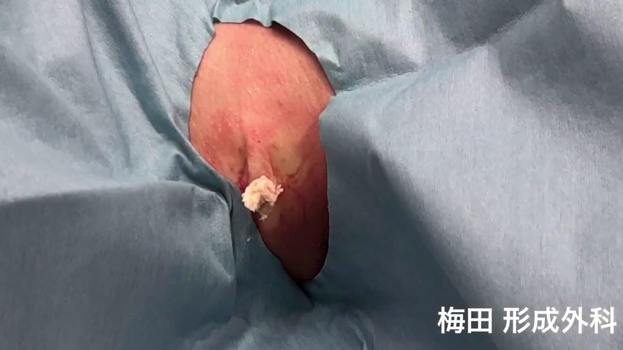 大阪梅田形成外科 粉瘤 くり抜き法
