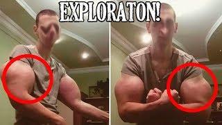 El Hulk ruso cambia el Synthol por implantes de silicona para agrandar sus músculos