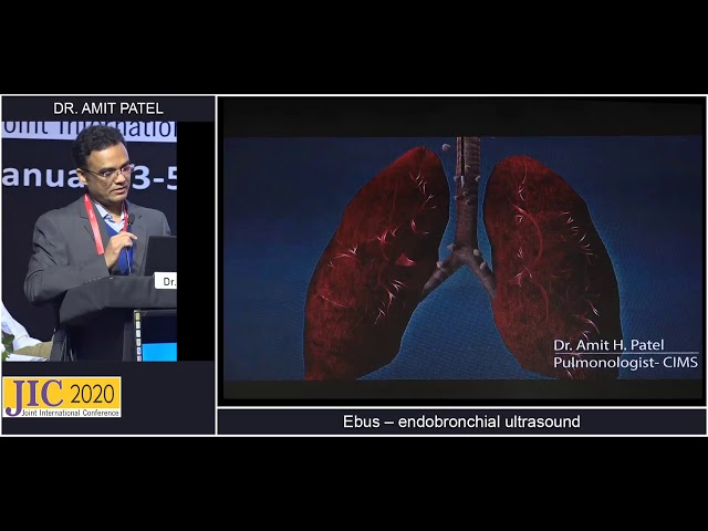 A Case Based Understanding of Endobronchial UltrasoundEBUS – Dr  Amit Patel