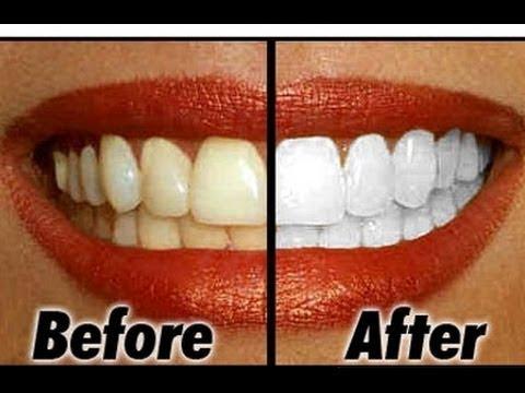 Terbukti Inilah Cara Memutihkan Gigi Secara Alami Yang Membuat