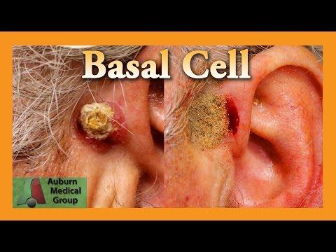 Basal Cell Carcinoma | Auburn Medical Group