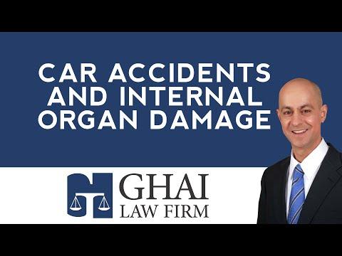Kennesaw Car Accidents and Internal Organ Damage