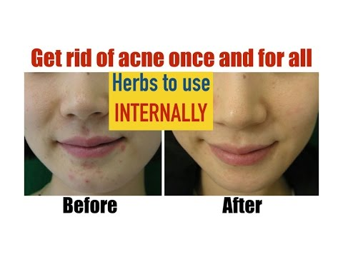 ✔ Natural Remedies for Acne with precise dosage and formulas (Herbs to use internally)